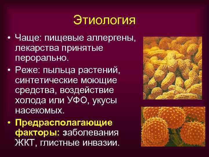 Этиология • Чаще: пищевые аллергены,  лекарства принятые  перорально.