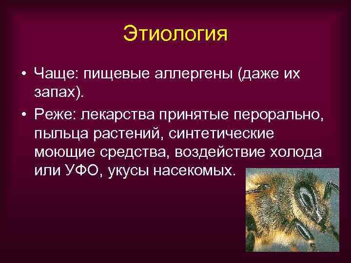 Этиология • Чаще: пищевые аллергены (даже их  запах).  • Реже: