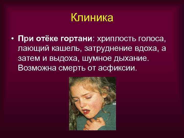 Клиника • При отёке гортани: хриплость голоса,  лающий кашель, затруднение