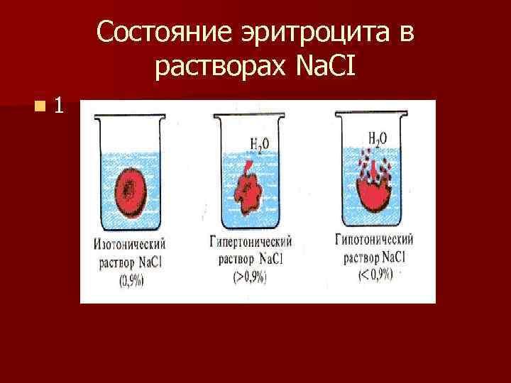 Состояние эритроцита в  растворах Nа. СI n 1
