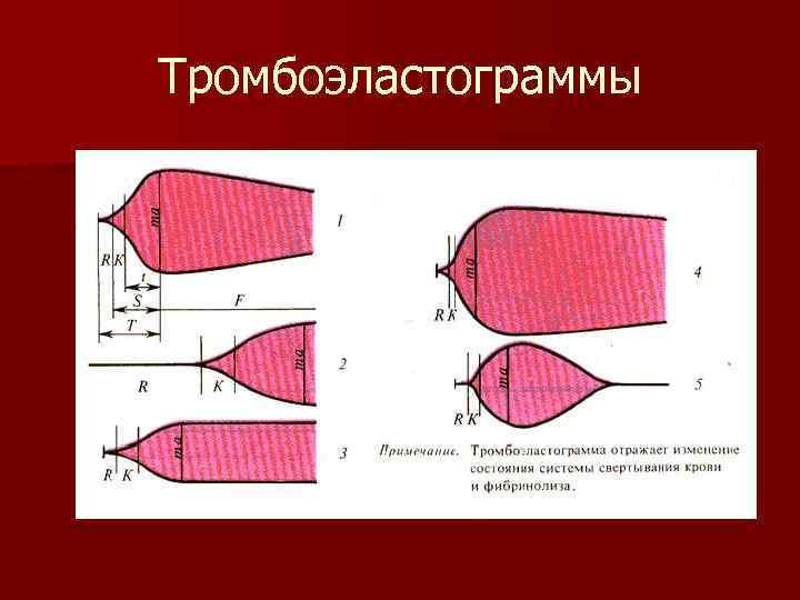 Тромбоэластограммы