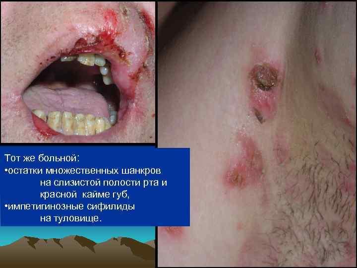Тот же больной:  • остатки множественных шанкров  на слизистой полости рта и