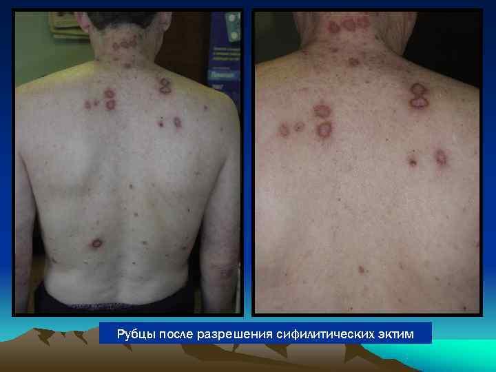 Рубцы после разрешения сифилитических эктим