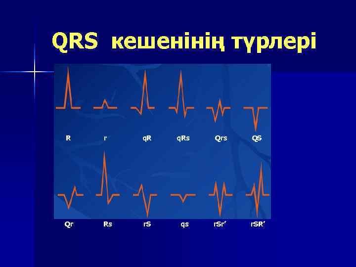 QRS кешенінің түрлері R  r  q. Rs  Qrs  QS Qr