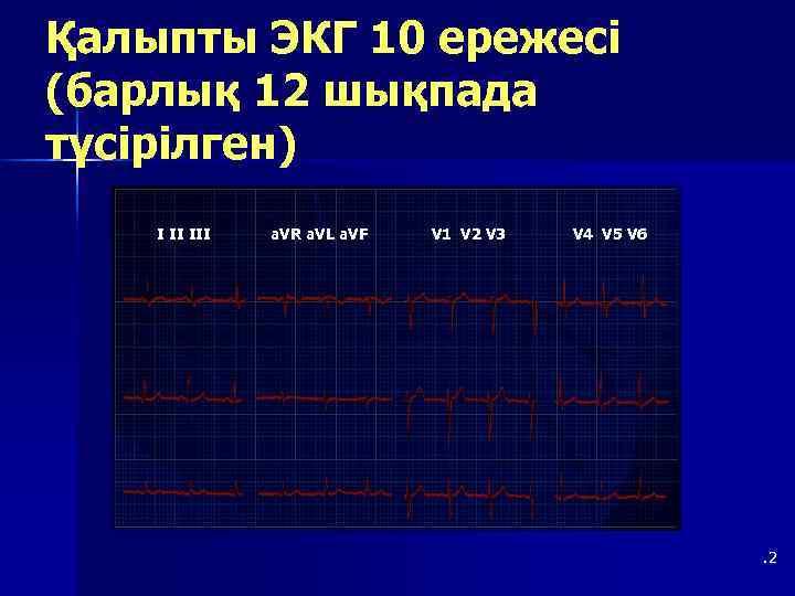 Қалыпты ЭКГ 10 ережесі (барлық 12 шықпада түсірілген) I II III  a. VR