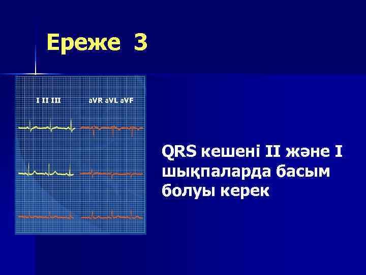 Ереже 3 I II III  a. VR a. VL a. VF