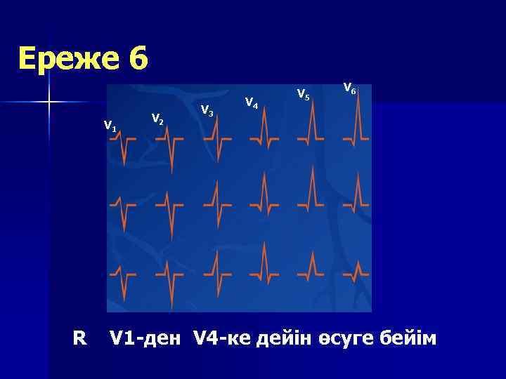 Ереже 6      V 5     V