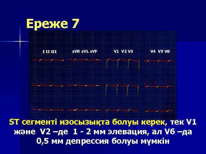 Ереже 7  I II III  a. VR a. VL a.
