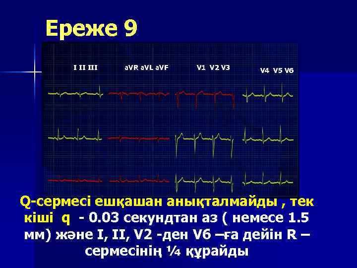 Ереже 9  I II III  a. VR a. VL a.