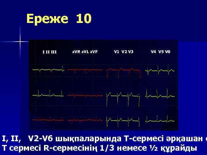 Ереже 10   I II III  a. VR a. VL a.