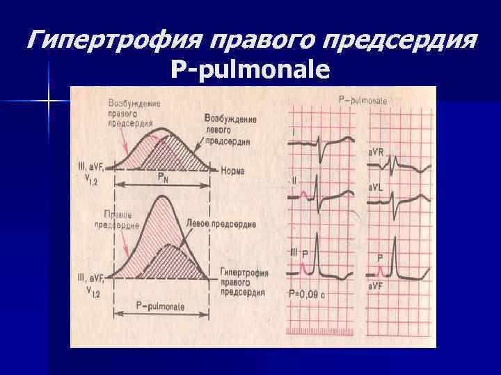 Гипертрофия правого предсердия   P-pulmonale