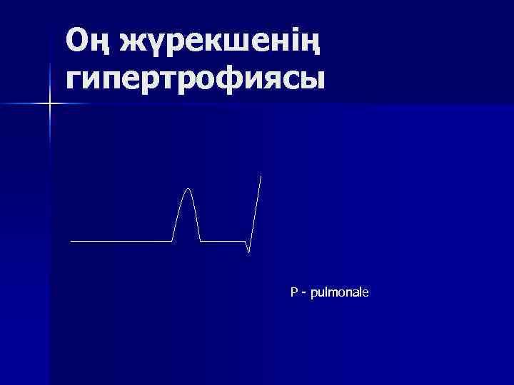 Оң жүрекшенің гипертрофиясы    Р  pulmonale
