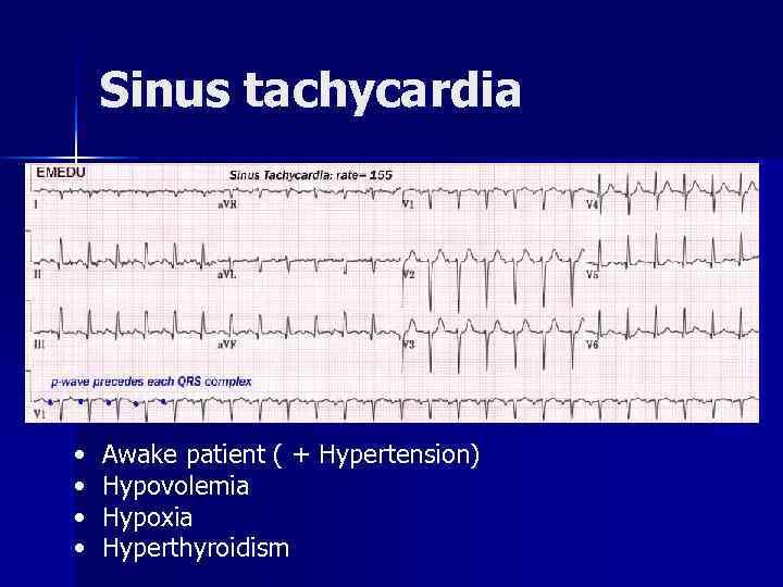 Sinus tachycardia •  Awake patient ( + Hypertension) •  Hypovolemia