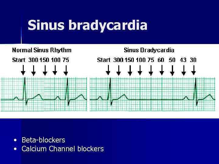 Sinus bradycardia • Beta blockers • Calcium Channel blockers