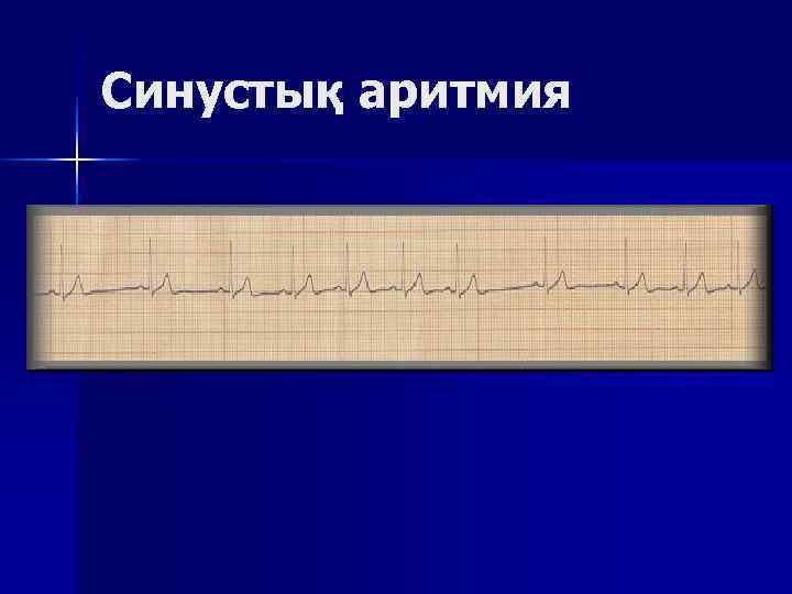 Синустық аритмия