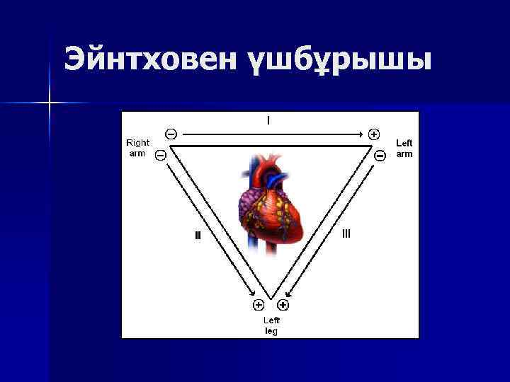 Эйнтховен үшбұрышы