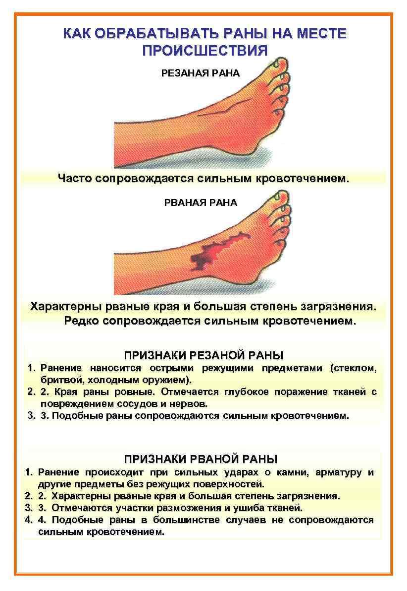 картинка как обработать рану неарабских народов