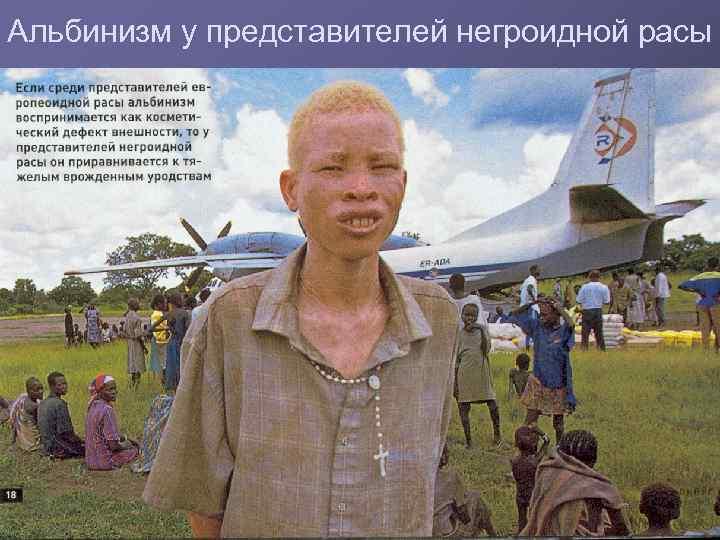 Альбинизм у представителей негроидной расы