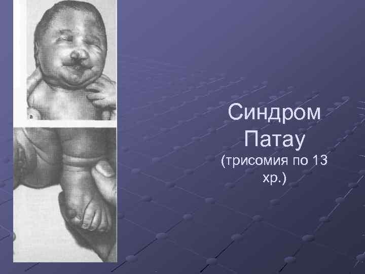 Синдром Патау (трисомия по 13  хр. )
