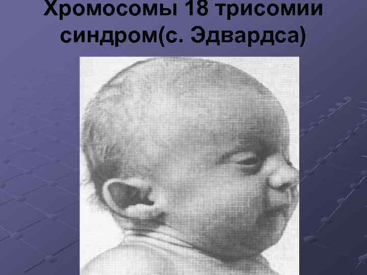 Хромосомы 18 трисомии синдром(с. Эдвардса)