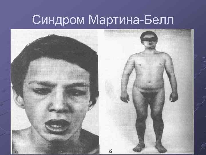 Синдром Мартина-Белл