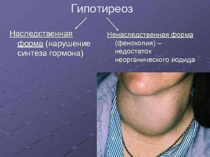 Гипотиреоз Наследственная Ненаследственная форма (нарушение (фенокопия) – синтеза гормона) недостаток