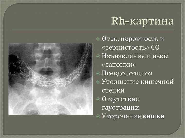Rh-картина  Отек, неровность и  «зернистость» СО  Изъязвления и язвы