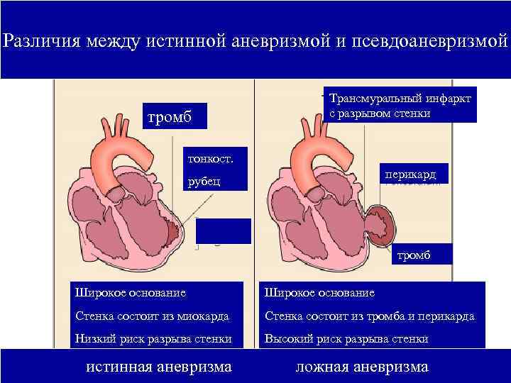 Различия между истинной аневризмой и псевдоаневризмой     Трансмуральный инфаркт