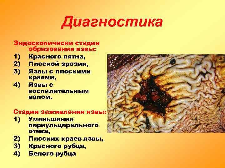 Диагностика Эндоскопически стадии  образования язвы: 1) Красного пятна, 2) Плоской эрозии,