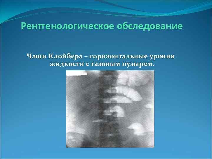 Рентгенологическое обследование  Чаши Клойбера – горизонтальные уровни  жидкости с газовым пузырем.