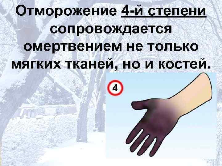 Отморожение 4 -й степени  сопровождается  омертвением не только мягких тканей, но и