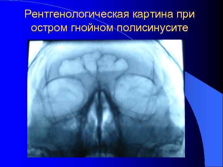 Рентгенологическая картина при остром гнойном полисинусите