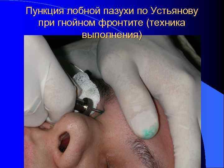 Пункция лобной пазухи по Устьянову  при гнойном фронтите (техника  выполнения)