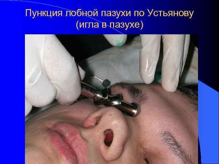 Пункция лобной пазухи по Устьянову  (игла в пазухе)