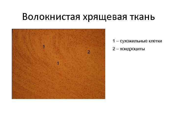 Волокнистая хрящевая ткань    1 – сухожильные клетки 1   2