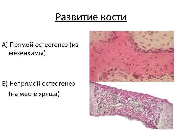 Развитие кости А) Прямой остеогенез (из  мезенхимы)  Б) Непрямой