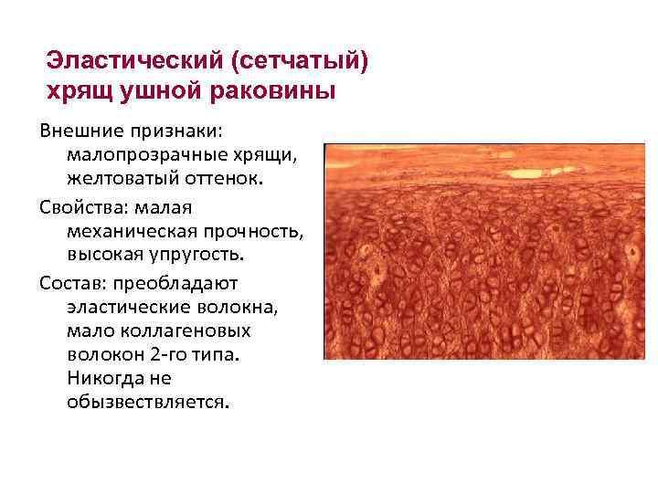 Эластический (сетчатый) хрящ ушной раковины Внешние признаки: малопрозрачные хрящи, желтоватый оттенок. Свойства: малая