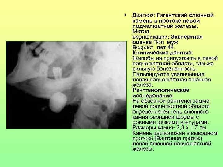 •  Диагноз: Гигантский слюнной камень в протоке левой подчелюстной железы. Метод верификации: