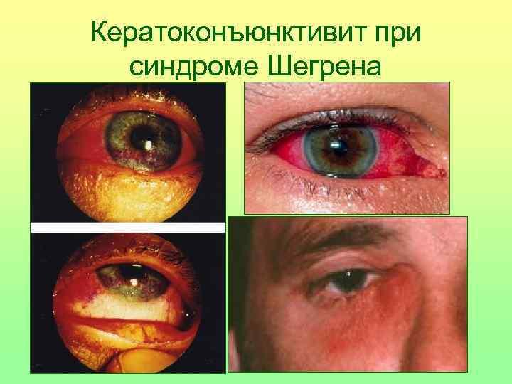 Кератоконъюнктивит при  синдроме Шегрена