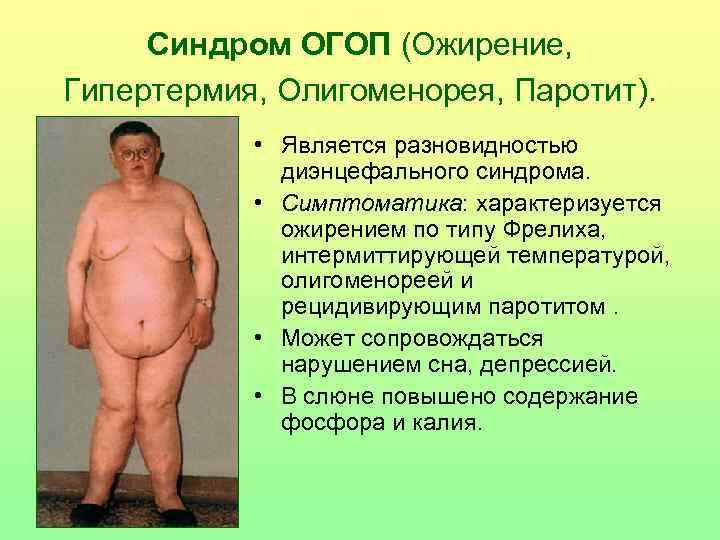 Синдром ОГОП (Ожирение,  Гипертермия, Олигоменорея, Паротит).    • Является разновидностью
