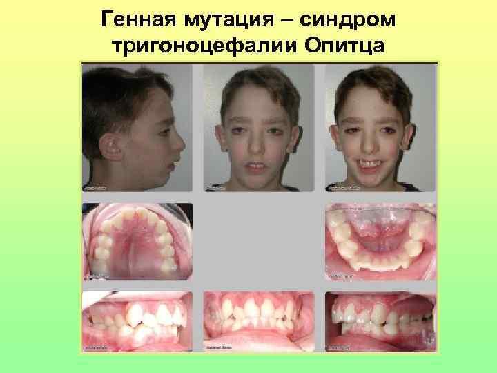 Генная мутация – синдром  тригоноцефалии Опитца