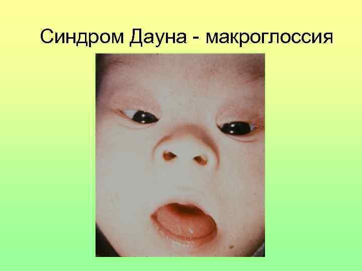 Синдром Дауна - макроглоссия