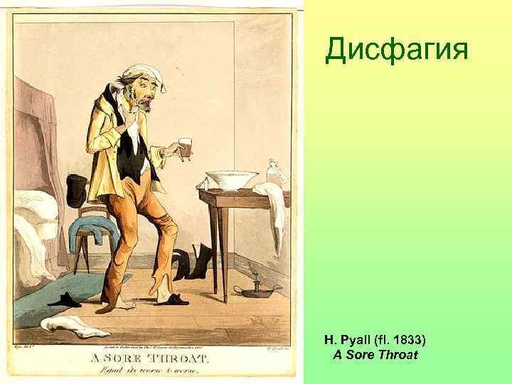 Дисфагия H. Pyall (fl. 1833)  A Sore Throat