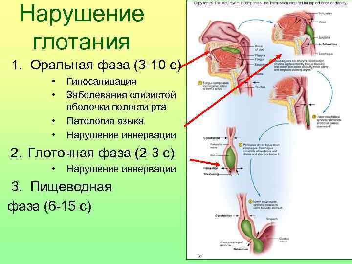 Нарушение глотания  1.  Оральная фаза (3 -10 с)   •