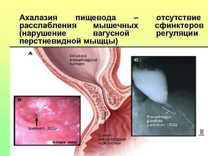 Ахалазия  пищевода  –  отсутствие расслабления  мышечных сфинктеров (нарушение вагусной