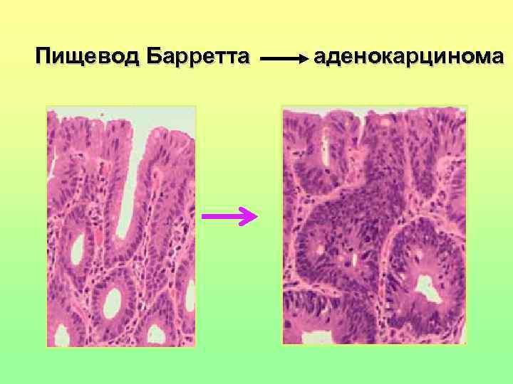 Пищевод Барретта   аденокарцинома