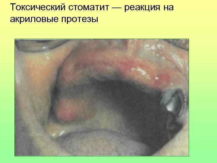 Токсический стоматит — реакция на акриловые протезы
