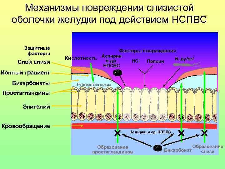 Механизмы повреждения слизистой оболочки желудки под действием НСПВС   Защитные