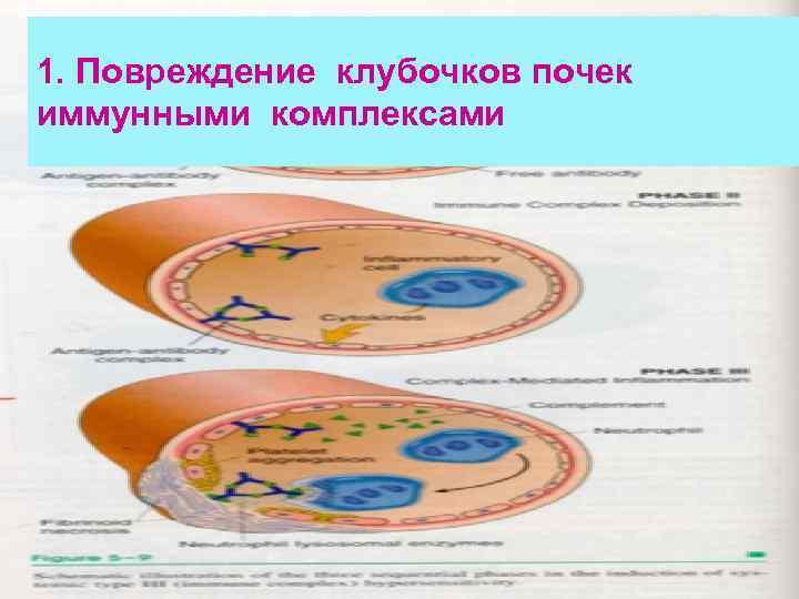 1. Повреждение клубочков почек иммунными комплексами