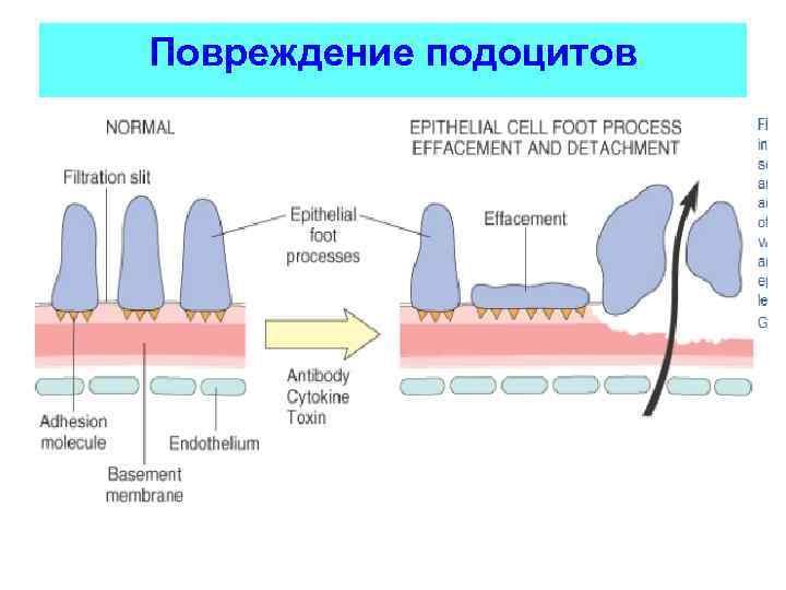 Повреждение подоцитов